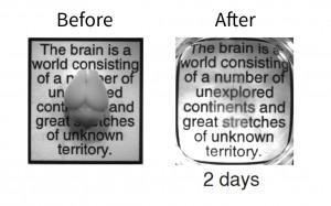 cerveau souris adulte clarity