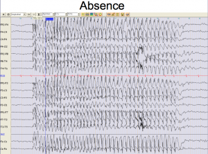 Electro-encéphalogramme pendant une crise d'épilepsie d'absence