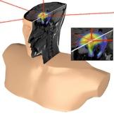 Figure 3. La radiothérapie dans le cerveau avec la présence de l'AGuIX. Image adaptée de la ref. 5